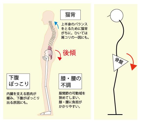 正しい姿勢について① | さくらづか治療院